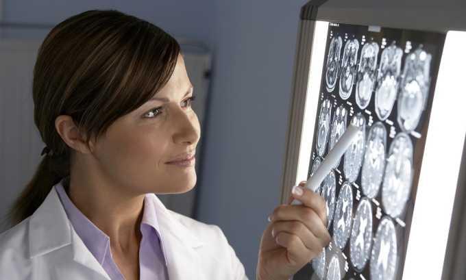 Для определения заболевания, его формы и стадии развития назначается рентген