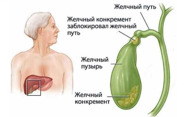 Несколько реже панкреонекроз поджелудочной появляется в результате обструкции желчных путей