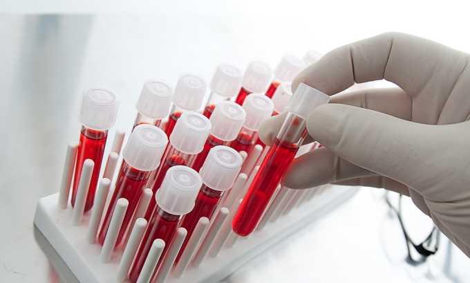 Биохимический анализ крови проводится для диагностики панкреатита