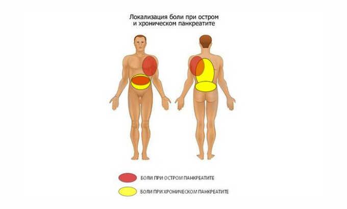 Локализация боли при заболеваниях поджелудочной железы