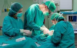Виды операций при панкреонекрозе