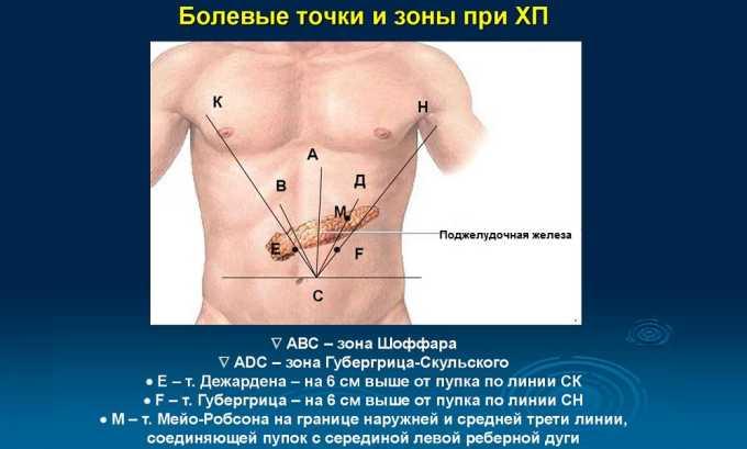 Симптом Мейо-Робсона обнаруживается на середине линии, условно проведенной от пупка до центра левого нижнего ребра, сопровождает воспалительный процесс в хвосте поджелудочной железы. Симптом выявляется легким надавливанием