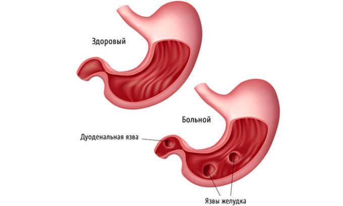 Язва желудка является противопоказанием к употреблению цикория