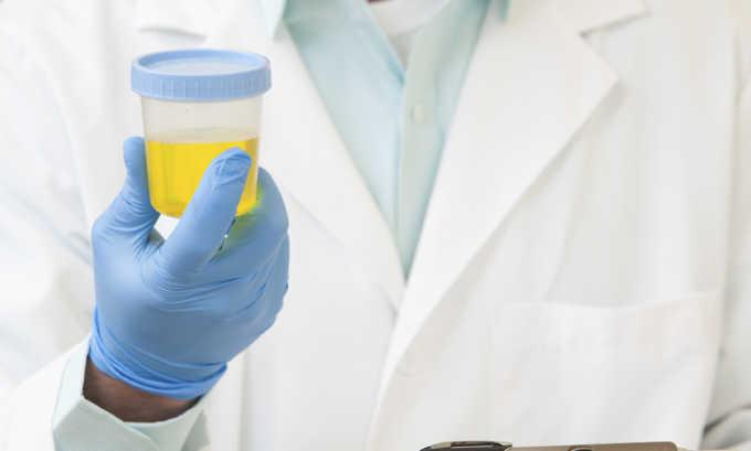 При диагностике панкреатита может быть проведен анализ мочи
