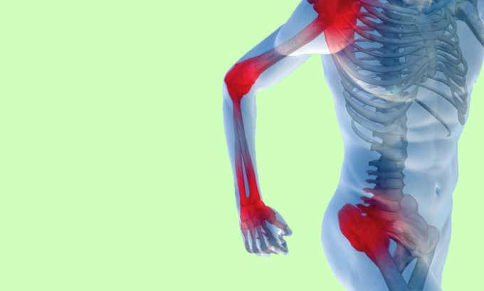 При развитии на фоне панкреатита токсического гепатита возможна боль в суставах