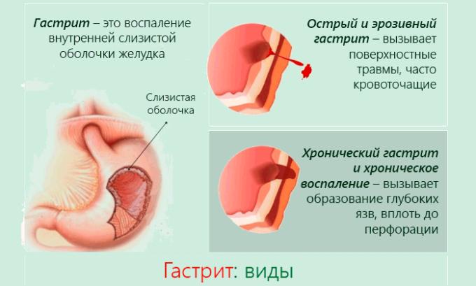 Гастриты и язвы - частые спутники панкреатит