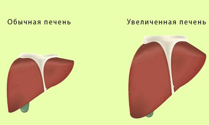 Главными аспектами терапии является нормализация состояния печени