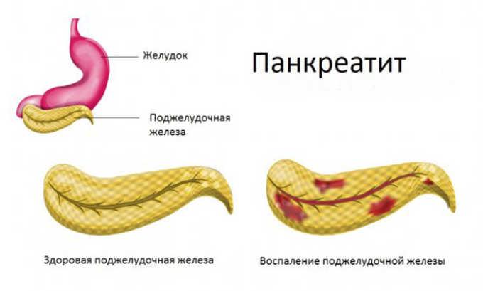 Раздражение стенок железы провоцирует рецидив панкреатита