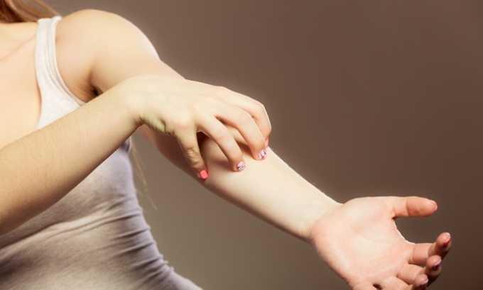 Мандарин относится к высокоаллергенным продуктам и может спровоцировать появление аллергической реакции у больного панкреатитом