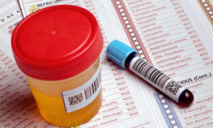 При детском панкреатите диагноз устанавливается при помощи лабораторных исследований крови и мочи