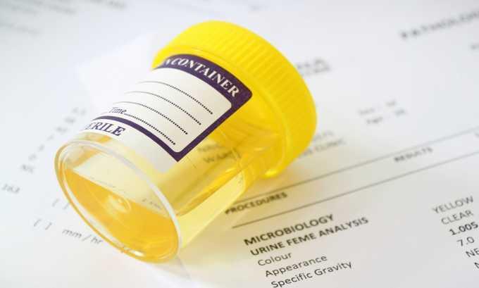 Анализ мочи назначают для диагностики панкреатита