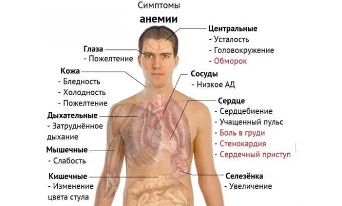 К вторичному признаку болезни относится анемия