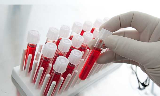 При панкреатите в крови повышаются лейкоциты, амилаза, липаза, С-реактивный белок, глюкоза, мочевина, а также увеличивается СОЭ