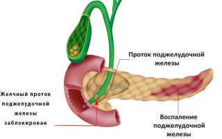Что такое билиарный панкреатит?