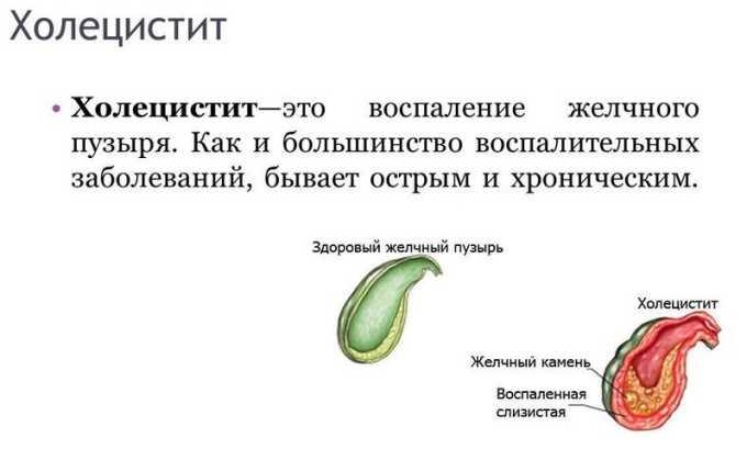После панкреатита часто страдает желчный пузырь и развивается холецистит
