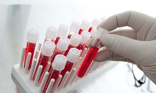 Общий анализ крови отражает характерные для воспалительного процесса признаки