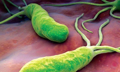 Эрозивный антральный гастрит при панкреатической болезни часто формируется под воздействием бактерии Хеликобактер пилори