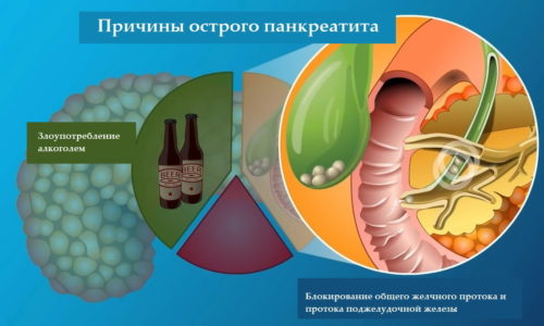Главная цель лечения заболевания — восстановить нормальное функционирование поджелудочной железы, не допустить формирования абсцессов и развития гнойного панкреатита