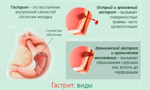 При гастрите и панкреатите возникает воспаление, при употреблении внутрь прополис оказывает антимикробное действие и помогает быстрее купировать воспалительные процессы в органах пищеварения