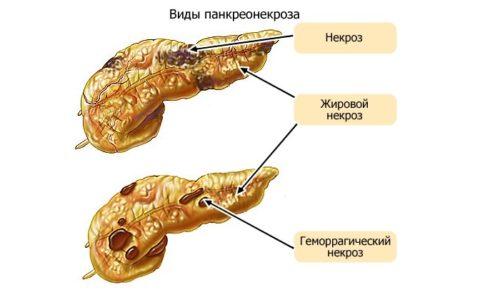 Чтобы остановить развитие патологии и предотвратить ее последствия, важно своевременно выявить симптомы панкреонекроза