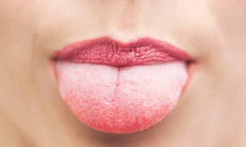 Язык считают индикатором здоровья человека. Наиболее чутко орган реагирует на обострение заболеваний желудочно-кишечного тракта, поэтому появление налета на языке при панкреатите нельзя оставлять без внимания