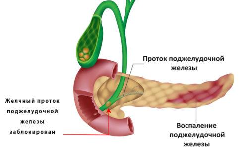 Острая форма панкреатита требует соблюдения строгой диеты