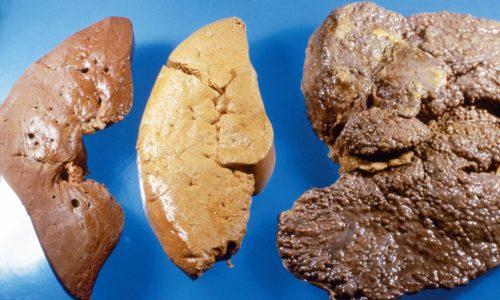 К реактивному воспалению поджелудочной железы приводит цирроз печени