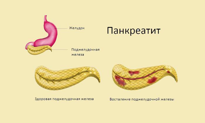 Лечение панкреатита (у мужчин и женщин) народными средствами ...
