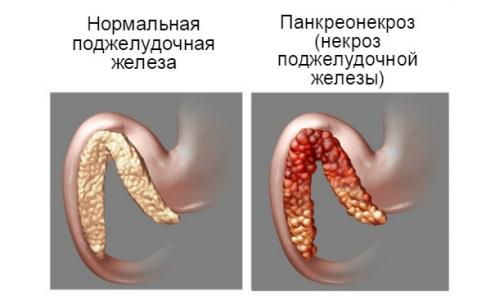 Панкреонекроз поджелудочной железы - это крайне опасное деструктивное заболевание, которое в большинстве случаев развивается на фоне приступа острого панкреатита