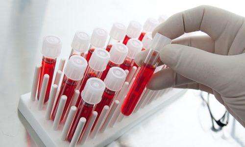 К косвенным признакам панкреатита относят изменения в составе крови - повышение СОЭ, количества лейкоцитов и концентрации панкреатических ферментов, увеличение уровня сахара, недостаток гемоглобина, нарушение углеводного обмена