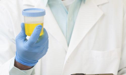 Анализ мочи при панкреатите - результативный метод клинико-диагностического исследования, позволяющий подтвердить или опровергнуть наличие заболевания поджелудочной железы