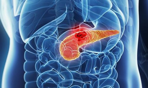 Хронический рецидивирующий панкреатит - воспаление поджелудочной железы, симптомы которого периодически возникают на протяжении всей жизни человека, что способствует атрофии и некрозу тканей органа