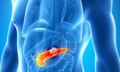 Обострение панкреатита и холецистита возможно как у детей, так и у взрослых
