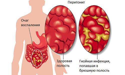 При неграмотном лечении или его отсутствии панкреатит может иметь опасные осложнения, одно из них перитонит
