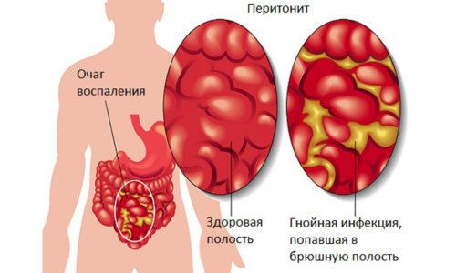 Перитонит характеризуется поражением передней брюшной стенки