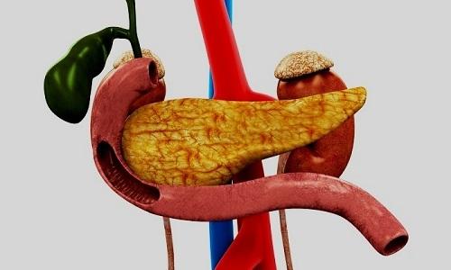 Воспаление поджелудочной железы встречается достаточно часто и может носить как острый, так и латентный характер