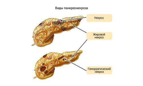 В зависимости от характера поражения тканей железы В.С. Савельев выделяет жировой и геморрагический панкреатит
